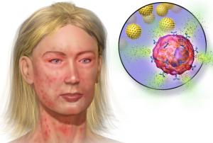 anafilaksi-belirtileri