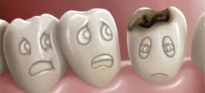 dişler nasıl temizlenmeli