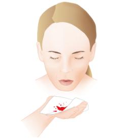 kan-tukurmek-tedavisi