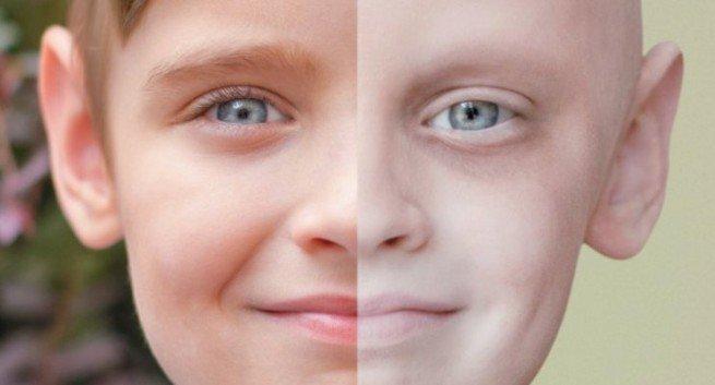 kanser-neden-olur