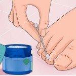 Tırnak Mantarı Nasıl Geçer? (Tıbbi Tedavi Süreci)